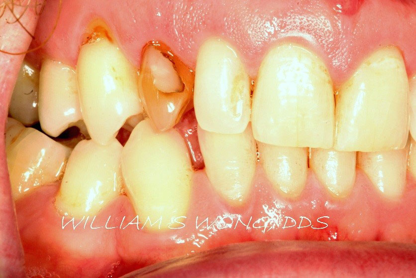 Before - Dental Implant and Crown