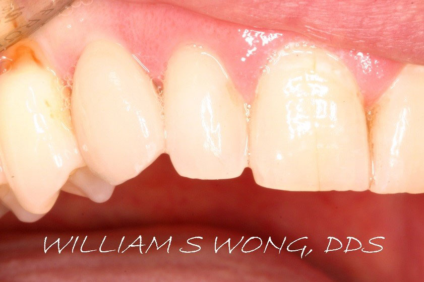 After - Dental Implant & Crown