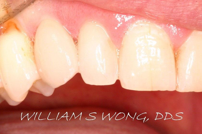 After - Dental Implant & Crown