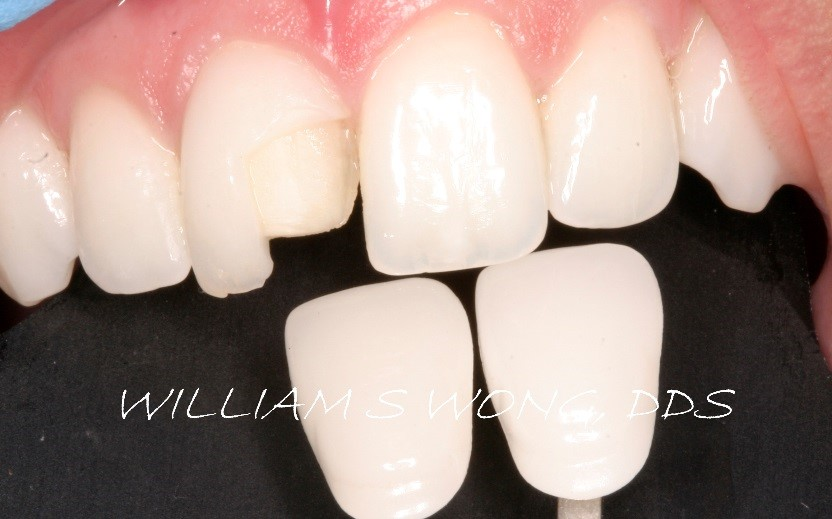 Before - Porcelain Veneers